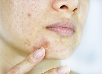 Illustration of Acne Turns White After Toothpaste Is Applied?