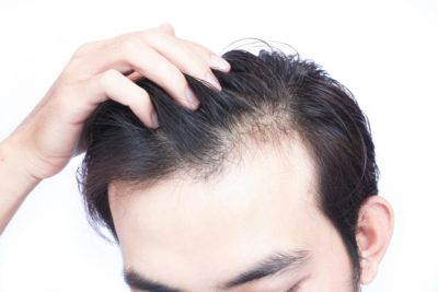 Illustration of Causes Of Prolonged Hair Loss?