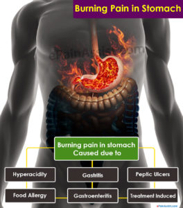Illustration of The Cause Of Burning In The Gut Is Accompanied By Excessive Anxiety?