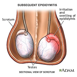 Illustration of The Right Testicle Is Swollen And Painful And The Discharge Looks Like Sperm?