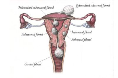 Illustration of Treatment Of Myoma Without Surgery In Women Aged 48 Years?