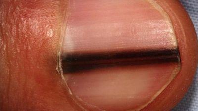 Illustration of Causes Of Black Lines Under The Nails?
