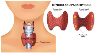 Illustration of Difficulty Swallowing After Thyroid Gland Surgery?