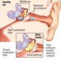 What Is The Danger Of People With Middle Ear Infections Getting On A Plane?