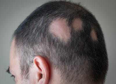 Illustration of Causes And Treats Sudden Hair Loss And Baldness?