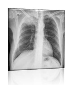Illustration of X-ray Examination Results Of Cough Sufferers Never Stop?