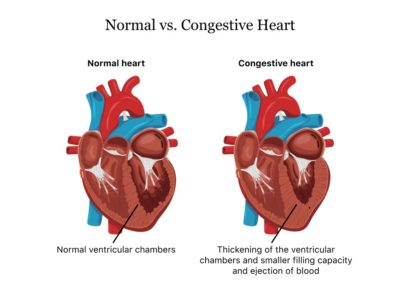 Illustration of Appropriate Treatment For People With Weak Hearts?
