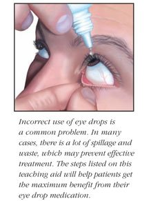 Illustration of Appropriate Use Of Eye Drops?