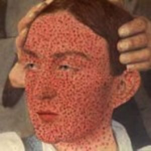 Illustration of The Left Eye Is Red And There Is A Smallpox-like Lump In The Eye?