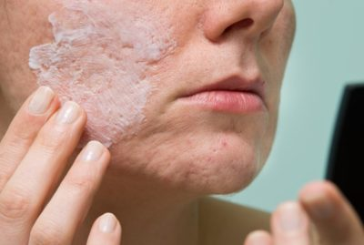 Illustration of Long-term Side Effects Of Using Acne Ointment?