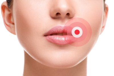 Illustration of Indication Of Herpes On The Lips At 35 Weeks Pregnant?