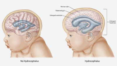 Illustration of Growth In Children With Hydrocephalus From The Womb?