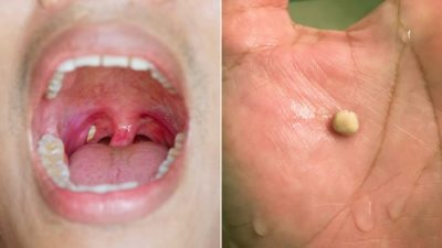 Illustration of How Do You Get Rid Of Tonsil Stones?