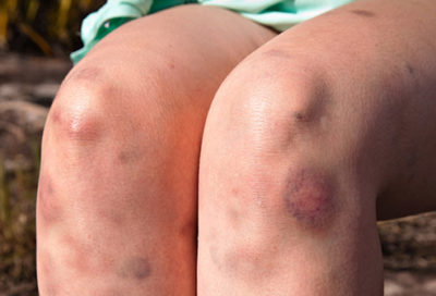 Illustration of Deal With Bruises On Legs From Bumps?