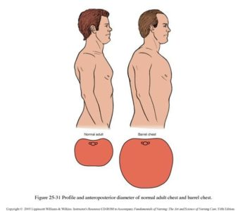 Illustration of One Of The Causes Of Barrel Chest And How To Cure It?