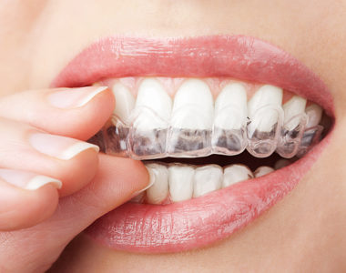 Illustration of The Benefits And Side Effects Of Teeth Whitening?