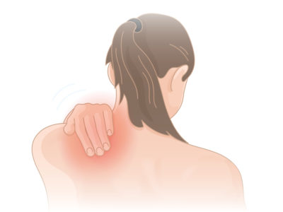 Illustration of Pain And Soreness In The Back To The Shoulder?