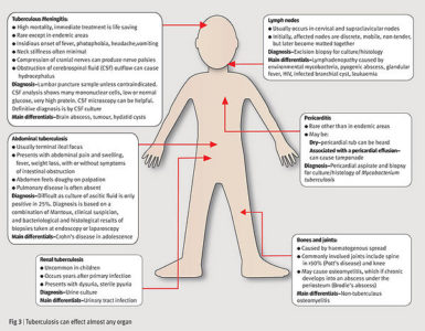 Illustration of Fever In Children During Tuberculosis Treatment?