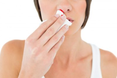 Illustration of What Causes Bleeding Snot? Is It Dangerous?