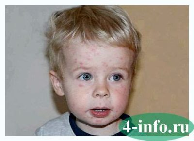 Illustration of Fever In A 6-year-old Child Accompanied By A Red Rash All Over The Body, Sore Throat And Canker Sores?