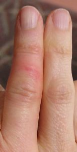 Illustration of Swollen, Red, Hot And Painful Finger Folds?