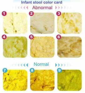 Illustration of Yellow And Soft Stools In Breastfed Babies Mixed With Formula Milk?