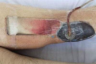 Illustration of The Surgical Wound Is Festering After Opening?