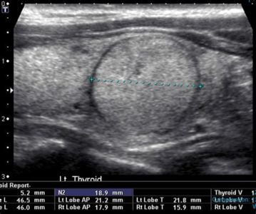 Illustration of Are Solid Thyroid Nodules Dangerous?