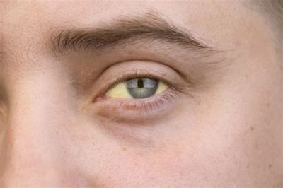Illustration of Causes And Treats Yellow And Pale Skin?