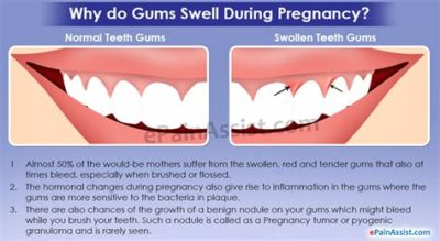 Illustration of Swollen And Painful Gums When Swallowing In Second Trimester Pregnant Women?