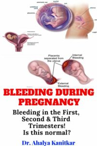 Illustration of Risk Of Bleeding During Childbirth In Pregnant Women With Hepatitis B?