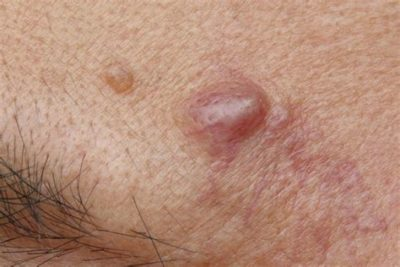 Illustration of Fluid-filled Lumps On The Skin Of The Chest And Back?