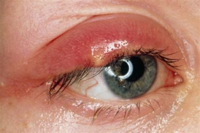 Illustration of Complaints Of Reddened, Swollen, Painful Eyes Filled With Yellowed Eye Discharge?