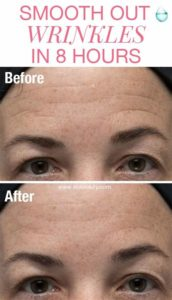 Illustration of Face Becomes Black And Wrinkled After Using Beauty Products?
