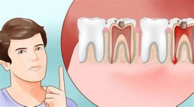 Illustration of Take Medicine For Toothache When You Don't Know You're Pregnant?