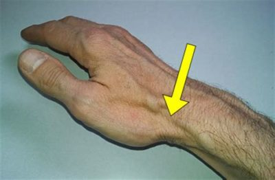 Illustration of Pain In The Thumb Like A Pulled Vein?
