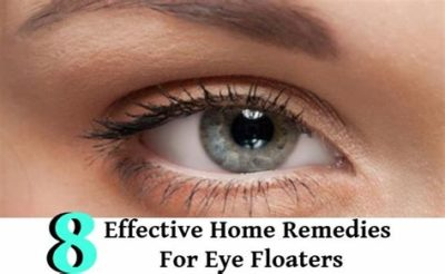Illustration of Treatment For Floaters In The Left Eye?