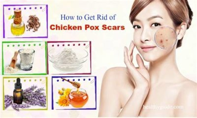 Illustration of How To Get Rid Of Chicken Pox Marks On Face?