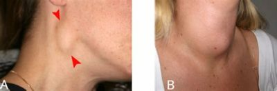 Illustration of Causes Of The Appearance Of A Lump In The Neck That Is Painful And Spreading?