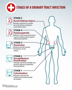 Illustration of Causes Of Urinary Tract Infections That Do Not Go Away Or Often Recur?