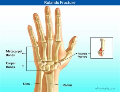 Illustration of Pain In The Hand Bones From Fractures?