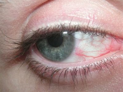 Illustration of The Right Eye Feels Red And Sore From Staring At The Computer Screen Often?