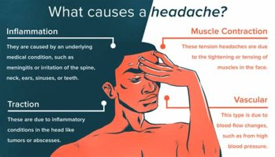Illustration of Causes Of Headaches During The Day?