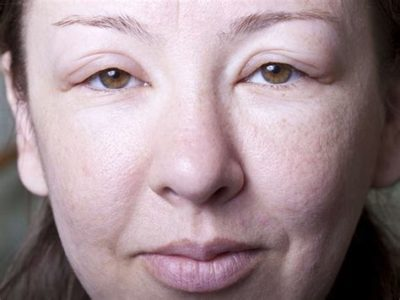 Illustration of Face Swelling And Redness In Leprosy Patients?