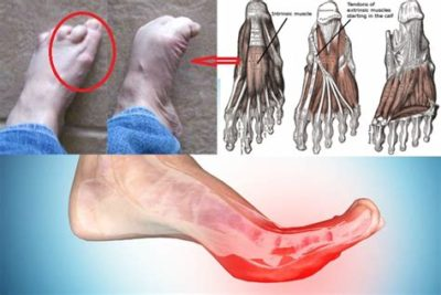 Illustration of Causes Of Cramping Hands And Feet During Pregnancy?