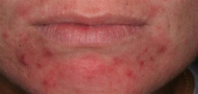 Illustration of Causes Of The Appearance Of Red Bumps On The Child's Body?