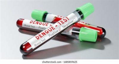 Illustration of Repeated Blood Draw When Experiencing Dengue Fever?