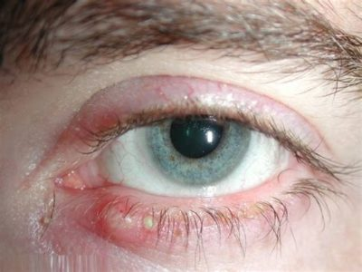 Illustration of Eyes Feel Sore After Getting In By Ants?