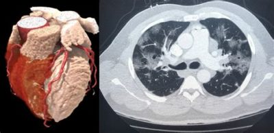 Illustration of What Is The Impact Of Ct?