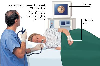 Illustration of Explanation Of The Results Of Gastric Endoscopy And Its Treatment?